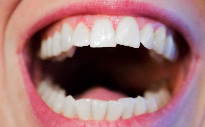 Aktualna technika używana w salonach stomatologii estetycznej zdoła sprawić, że odzyskamy śliczny uśmiech.