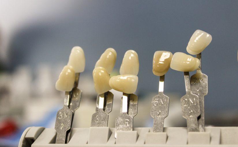 Ładne nienaganne zęby także świetny prześliczny uśmieszek to powód do zadowolenia.